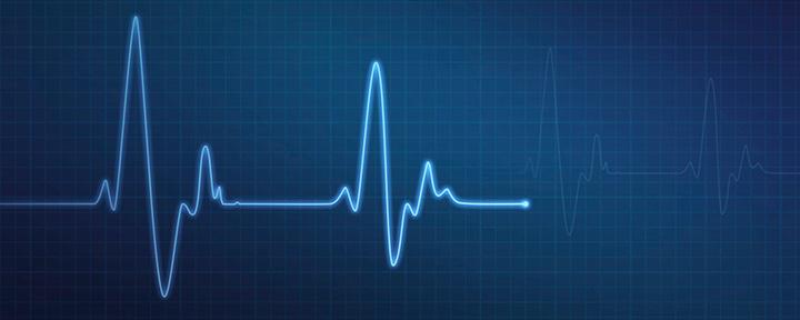Лучший монитор сердечного ритма: часы, ремни и фитнес-трекеры